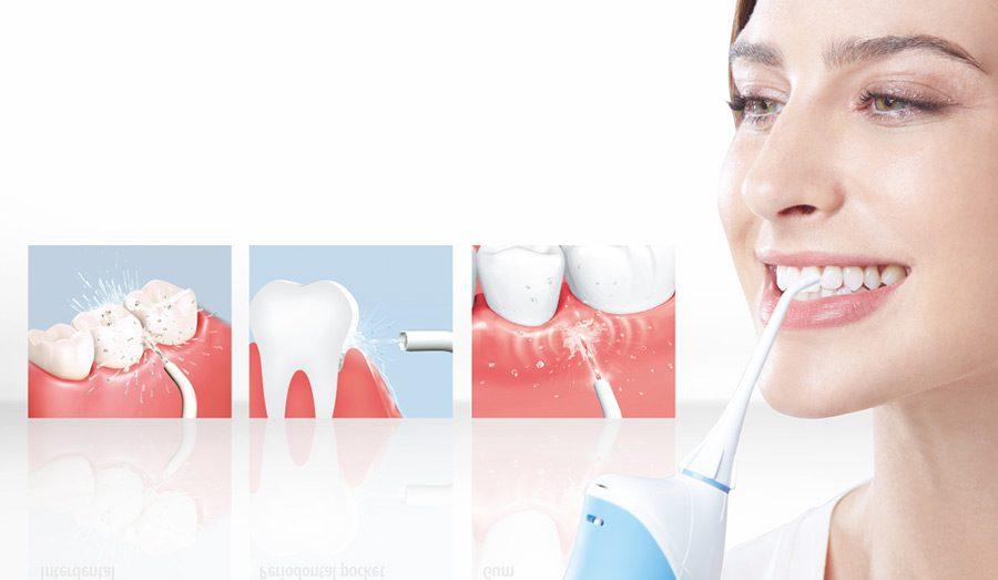 Curata dintii cu un irigator bucal: avantaje, tipuri, preturi si recomandari